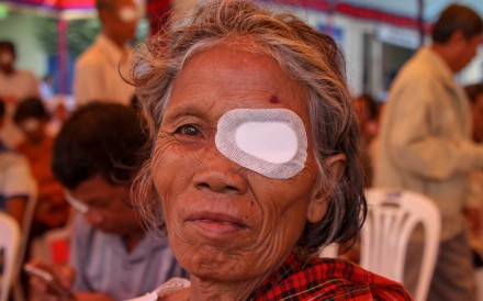 A Cambodian patient after surgery conducted by Chinese doctors. Photo: Edouard Morton