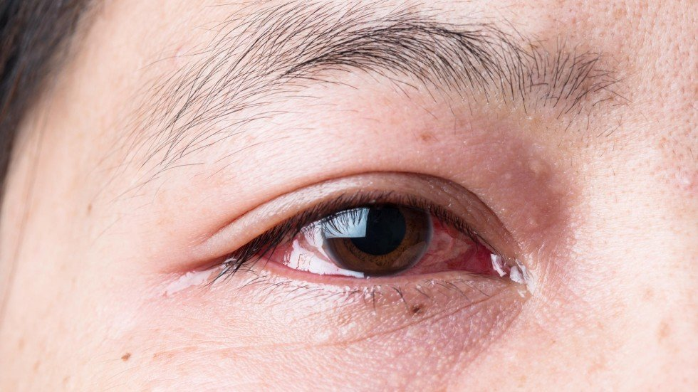 Inflammatory Eye Condition Iritis Should Be Treated Immediately