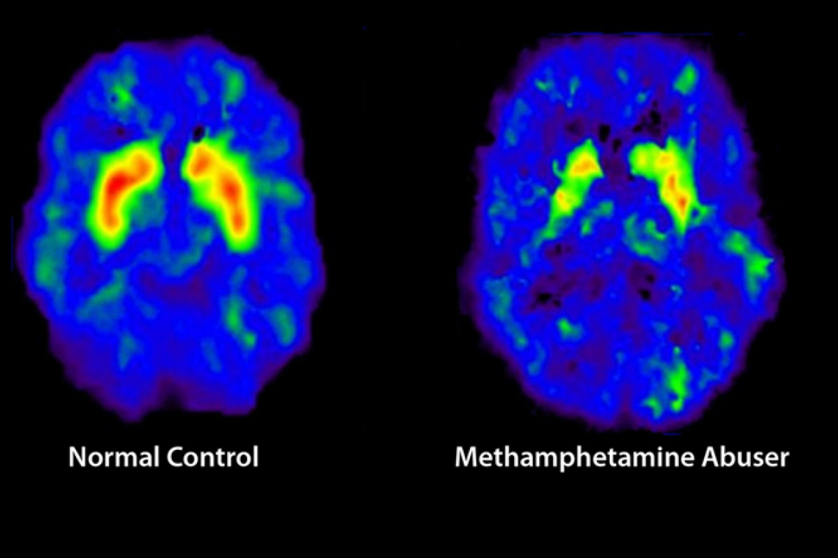 Brain scans show diminished control caused by crystal meth use.