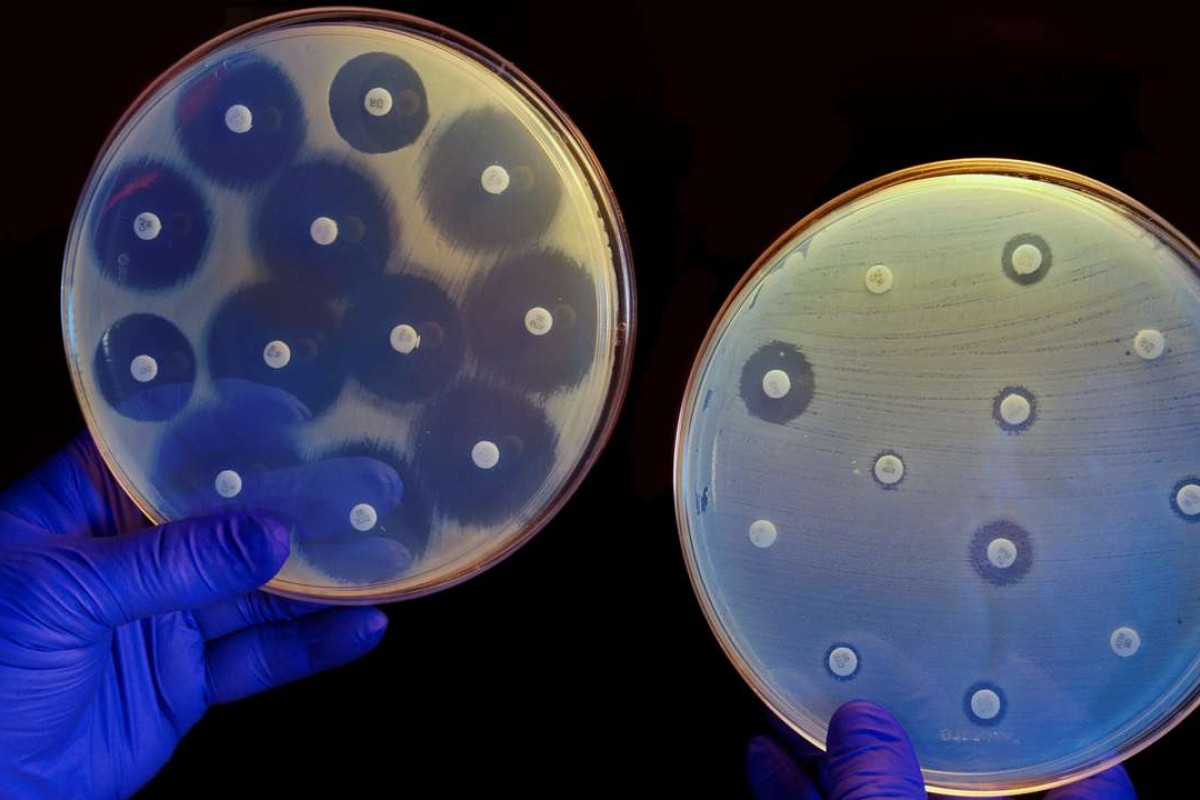 The plate on the left contains bacteria that are susceptible to antibiotics while the one on the right contains antibiotic-resistant bacteria. Picture: Alamy