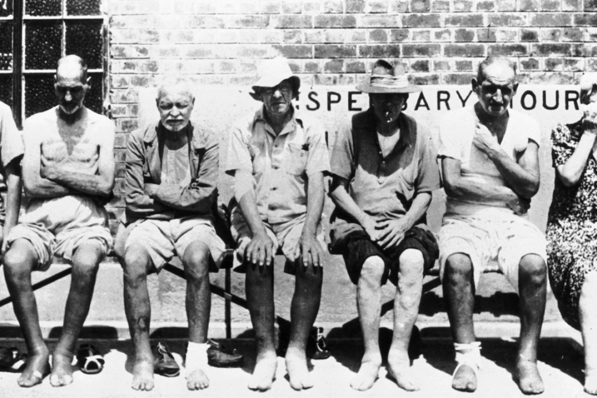 Undernourished prisoners of war at Stanley Internment Camp during the Japanese occupation of Hong Kong.