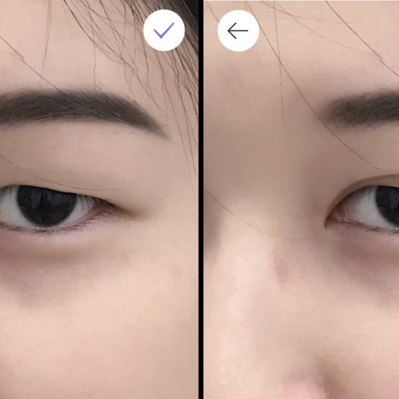 Why double eyelid surgery is on the rise in Asia: rising