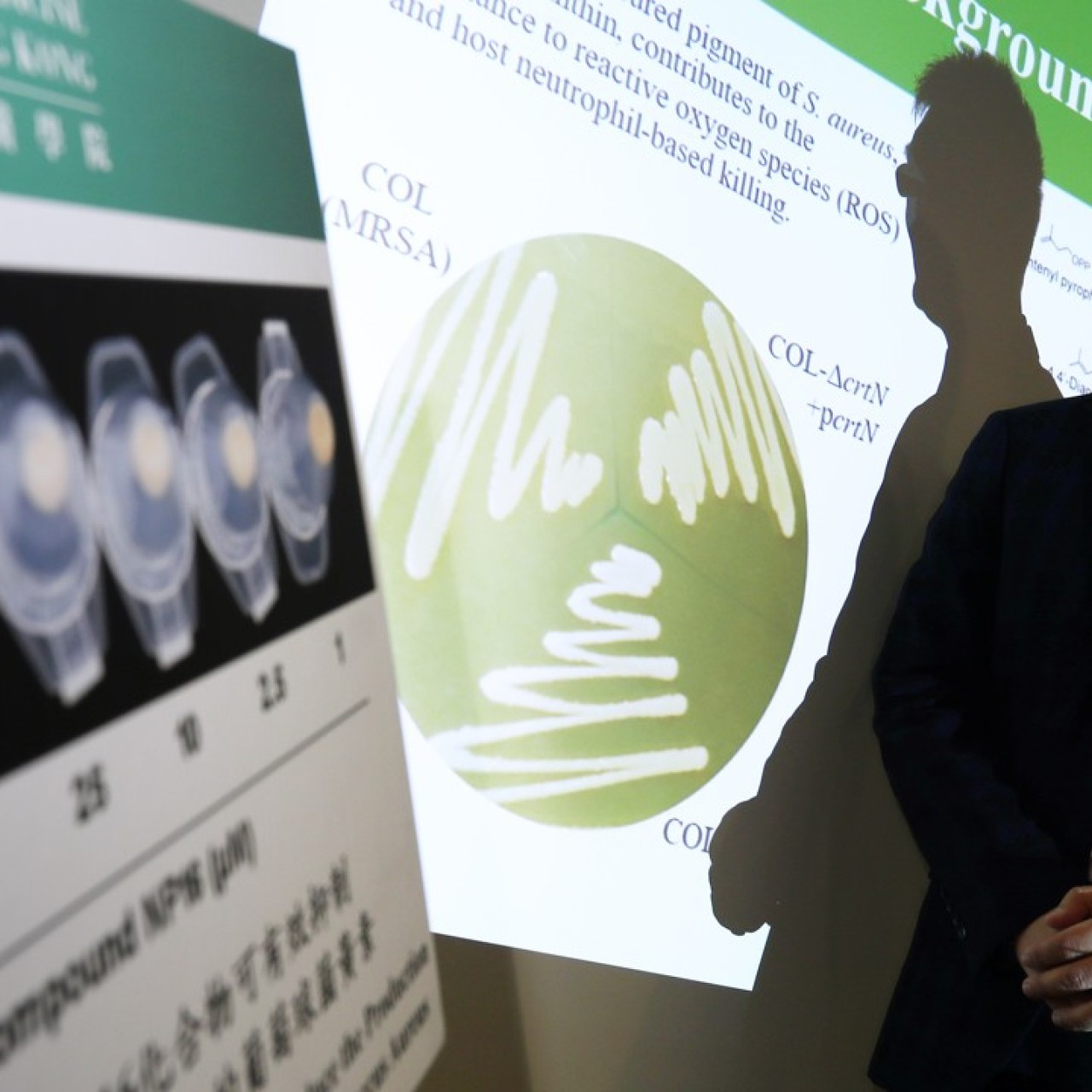 Superbug breakthrough by HKU researchers in fight against